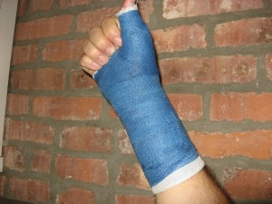 broken-wrist-blue-cast